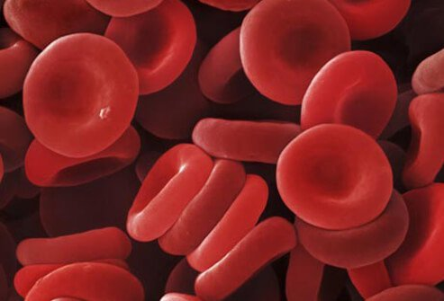 An illustration of red blood cells.