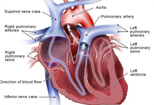 Blood pressure is determined by the amount of blood pumped by the heart's left ventricle into the arteries, the function of the heart's valves and the resistance to the flow of blood caused by the walls of the arterioles.