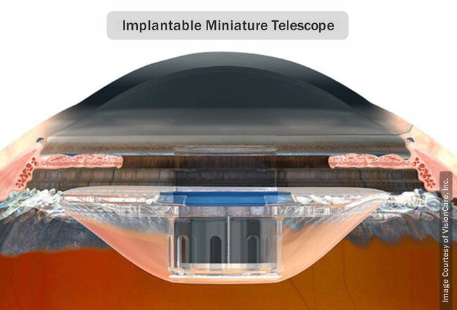 A small telescope may be placed in the eye in select cases of advanced dry macular degeneration.
