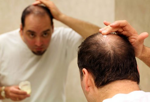 Minoxidil may help slow the rate of hair loss, but you have to use the product continuously.