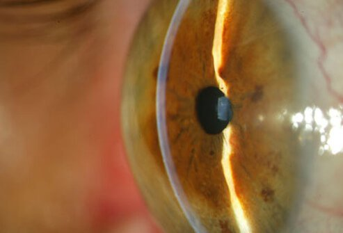 This group of eye diseases gradually damages the optic nerve and may lead to blindness.