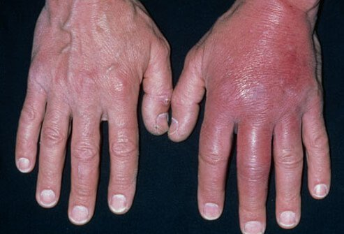 Often, the first indication of MRSA infection is a spread of the infection into the surrounding skin.