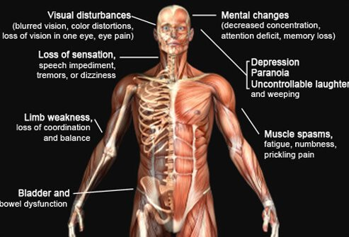 Picture of Multiple Sclerosis Symptoms