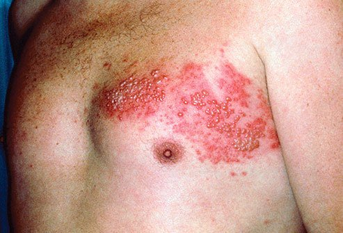 When you have chickenpox, the virus that caused it sticks around, even after you get better.