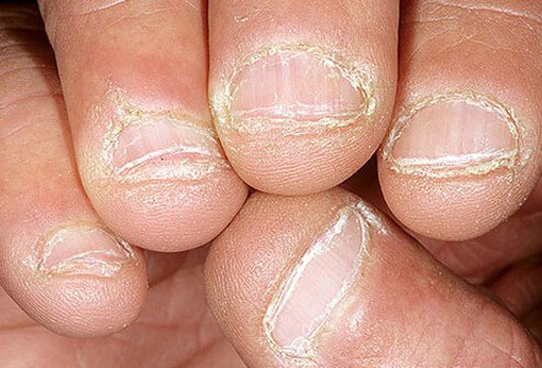 Chewing your nails leaves them looking raw and rough.