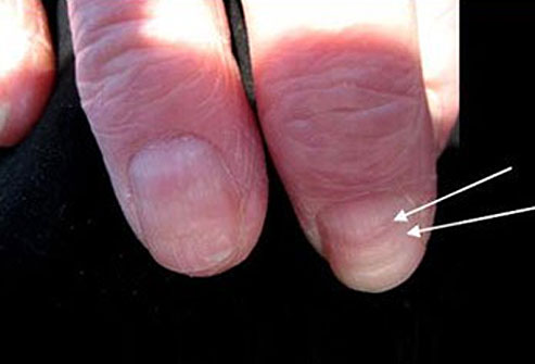 These unsightly lines may form in response to extreme cold, nail trauma, heart attack, or many other extreme stresses like syphilis, mumps, and pneumonia.