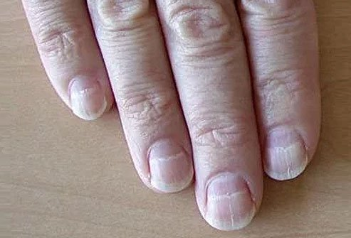 If your nails are crossed with one or more pale or white bands from side to side, you may have Muehrcke's lines.