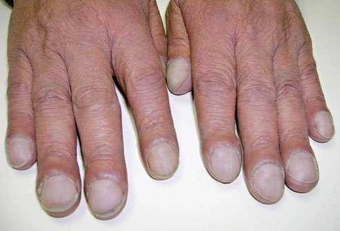 Clubbed nails occur when the ends of your fingers or toes grow bulb-like.
