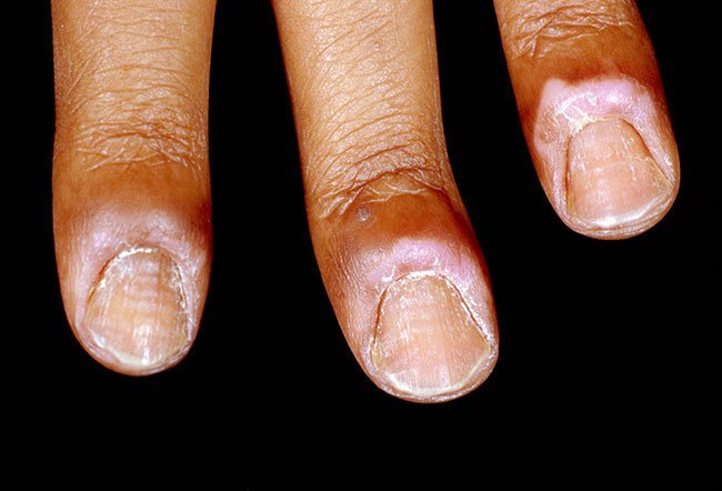 Example of inflammation causing a puffy nail fold.