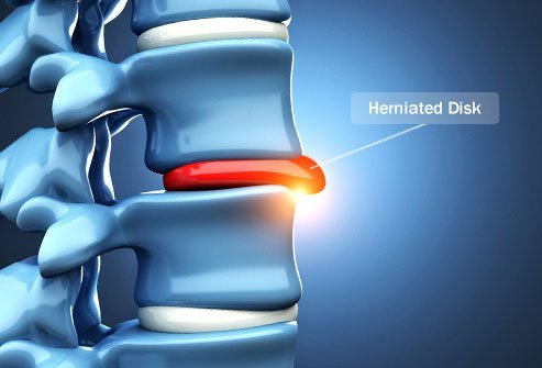 Herniated or slipped discs can cause pain, weakness, and numbness.
