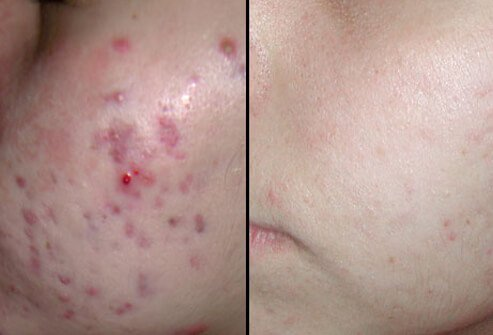 Before and after photos of diode laser treatment.
