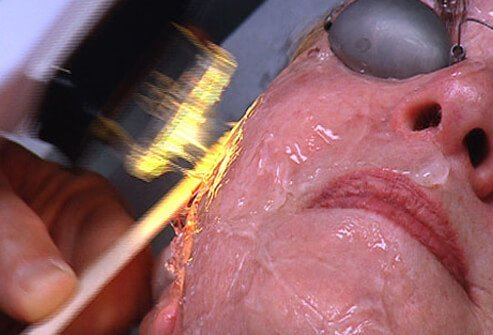 A woman undergoes an intense pulsed light (IPL) treatment.