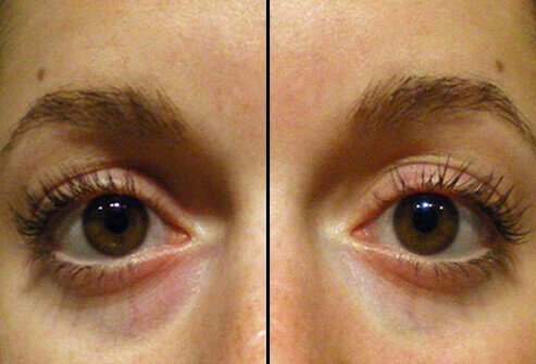 Before and after photos of cosmetic filler for dark circles under the eyes.