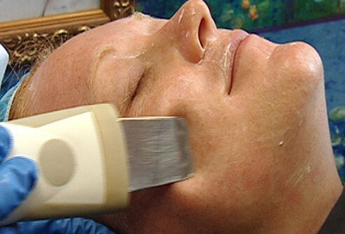 A woman has a microdermabrasion treatment.
