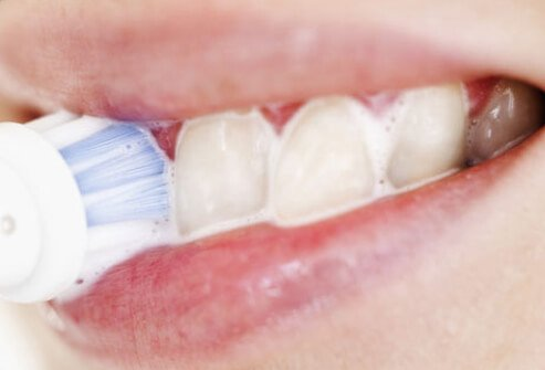 Most regular toothpastes, gels, and liquids may remove some stains, but most do not contain the bleaches mentioned above, so they may have little or no effect in making your teeth whiter.