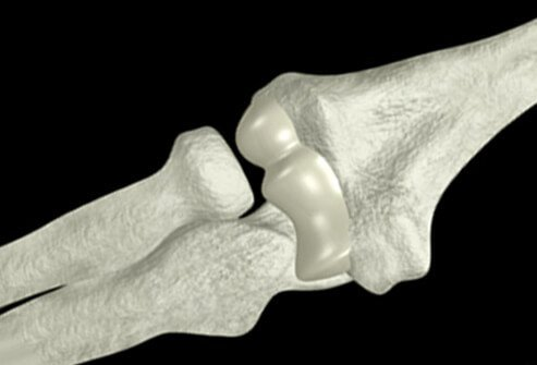 Illustration of the elbow bones.