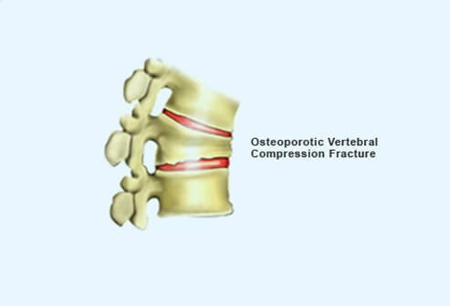 Picture of Fractured Spine