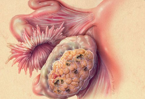 Signs, symptoms of ovarian cancer tend to be apparent in the later stages of the disease.