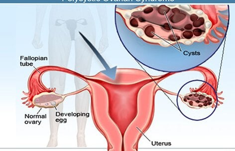 What Are the Different Types of Ovarian Cyst?