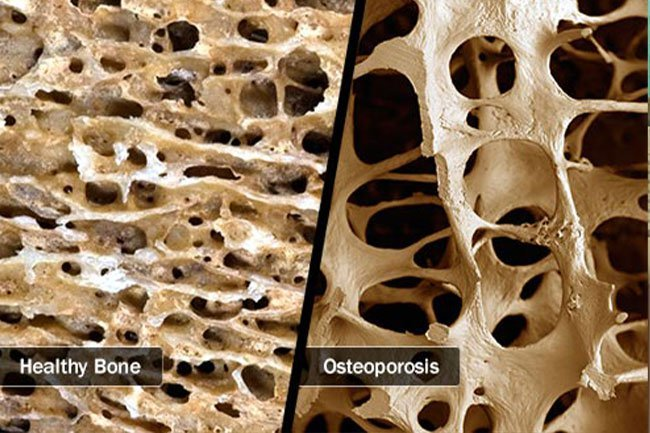 Osteoporosis causes your bones to become weak and could lead to fractures.