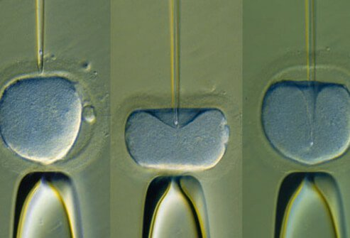 Injection of human sperm into the egg.