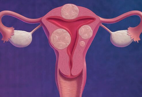 Illustration of uterine fibroids.