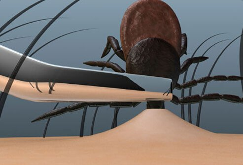 Illustration of tick removal.