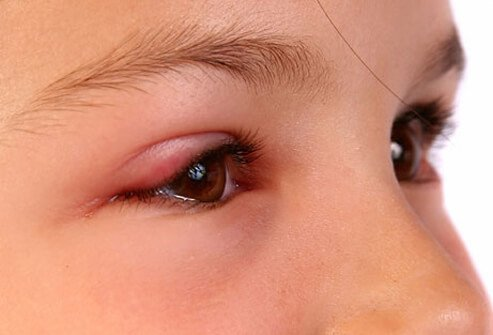 A young girl with a swollen eyelid from pinkeye