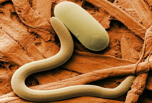 There are several types of worms that can make people sick.