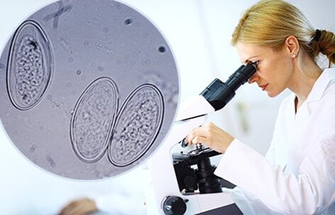 A woman looking at an image of a pinworm under a microscope.