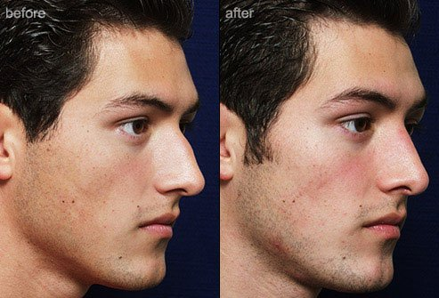 Rhinoplasty is surgical alteration of the nose for cosmetic or functional purposes or both.