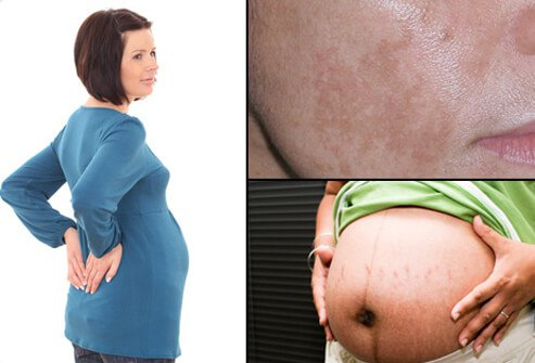 A pregnant woman with back pain (left), pregnant woman with stretch marks and line running down her belly (center) and woman with melasma (pregnancy mask) on her cheek (right).