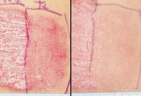 A photo shows the effects of laser therapy treatment for psoriasis.