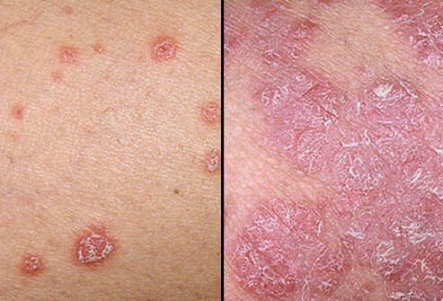 Photo of psoriasis symptoms.