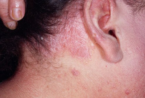 Picture of Psoriasis of the Scalp