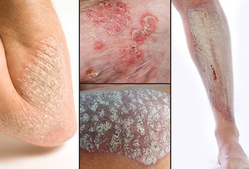 Several variations of psoriasis.