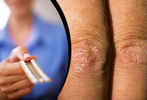 Hormones changes usually precede psoriasis and can influence the severity.