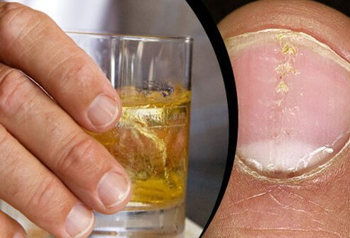 Some studies show a link between heavy alcohol drinking and psoriasis flares.