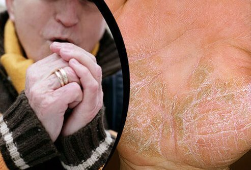 Cold weather air, dry temps, and diminished sunlight all contribute to psoriasis flares.