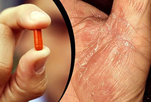 Medications may trigger psoriasis flares or make it worse.