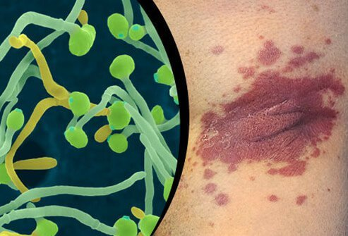 Infections activate the immune system and may trigger a flare up of psoriasis.