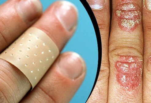 Guarding and protecting skin against injuries such as cuts and bruises can help minimize the risk of psoriasis flare ups.