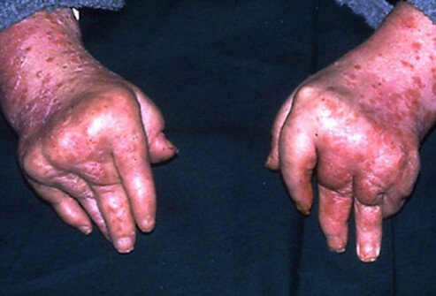Arthritis mutilans is the least common form of psoriatic arthritis, but the most severe, causing degeneration and deformity.