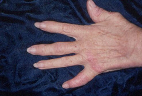 Most people have psoriasis for years before they develop psoriatic arthritis.