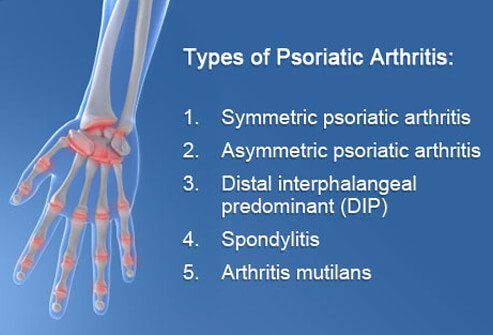 There are five types of psoriatic arthritis, based on the parts of the body that are affected and the severity of the inflammation.