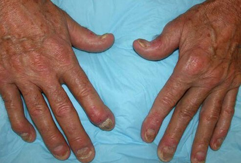 Distal interphalangeal predominant psoriatic arthritis involves primarily the small joints in the fingers and toes closest to the nail.