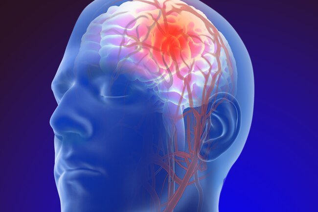A stroke stops the flow of blood to part of your brain.