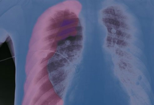 A collapsed lung creates breathing problems.