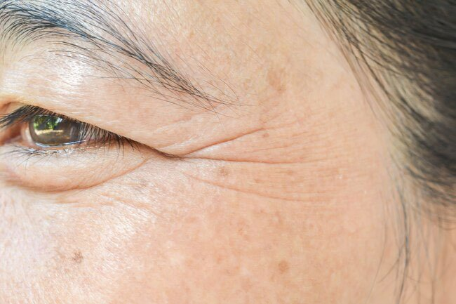 Retinoids soften wrinkles and fine lines.