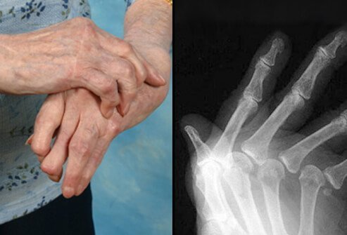 Another test used to diagnose rheumatoid arthritis is X-ray.